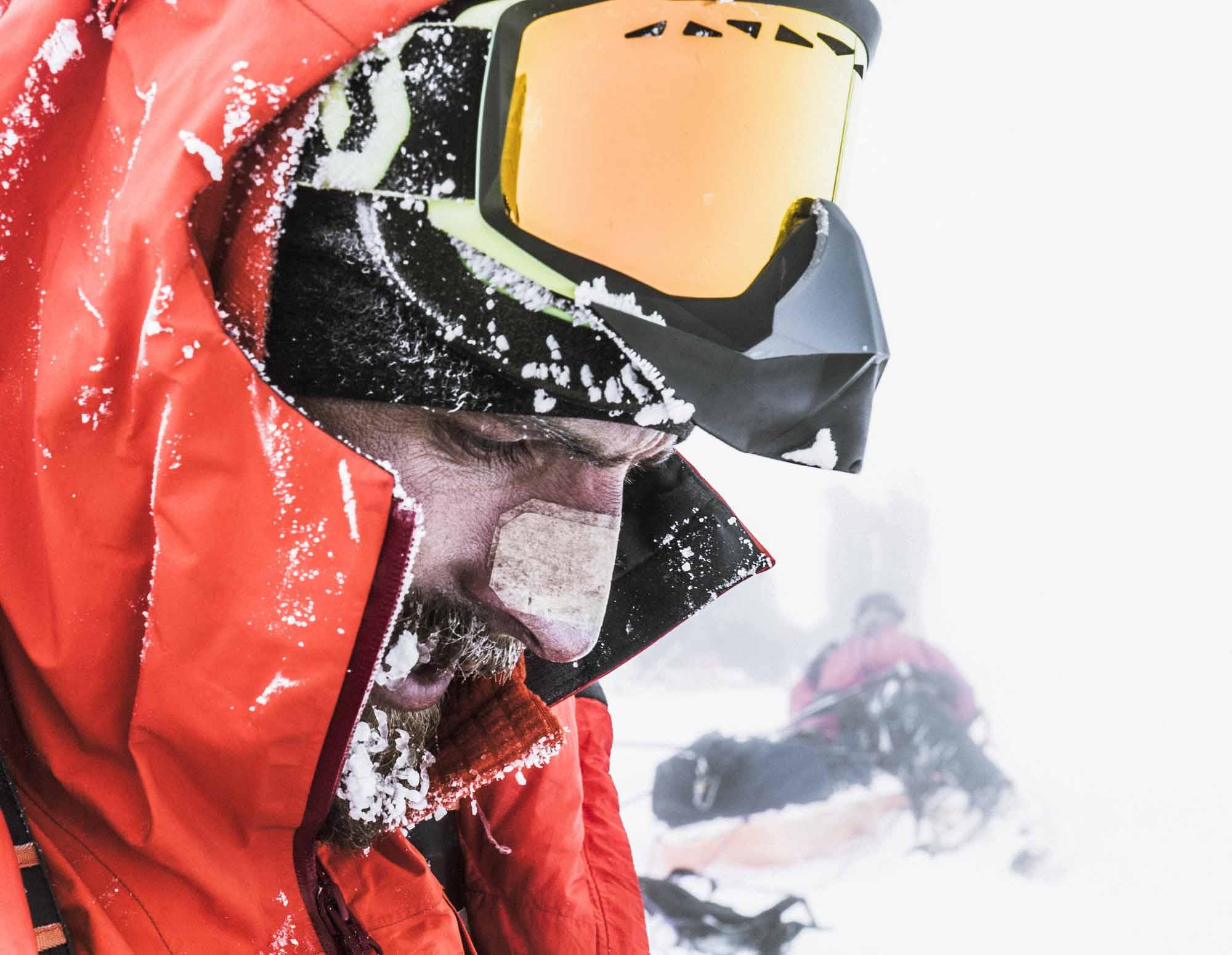 Polar-Quest-Exploration-Polaire-Exploring-Boundaries-in-Antarctica-Caroline-Cote-photo-frostbite-on-nose