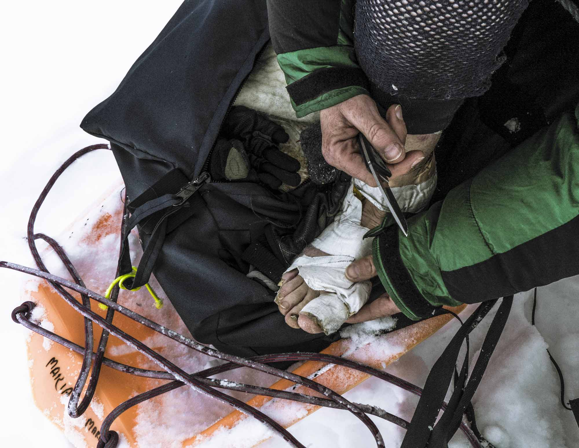 Polar-Quest-Exploration-Polaire-Exploring-Boundaries-in-Antarctica-Caroline-Cote-photo-frostbite